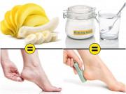 9 cách đơn giản chữa nứt gót chân cực nhanh mùa hanh khô